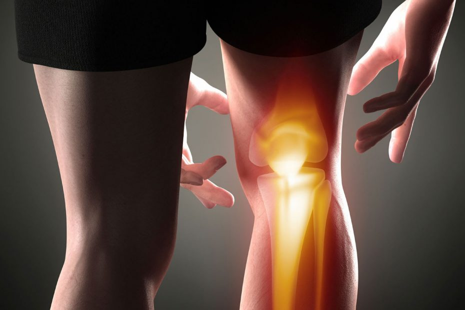 runner's knee causes and treatment